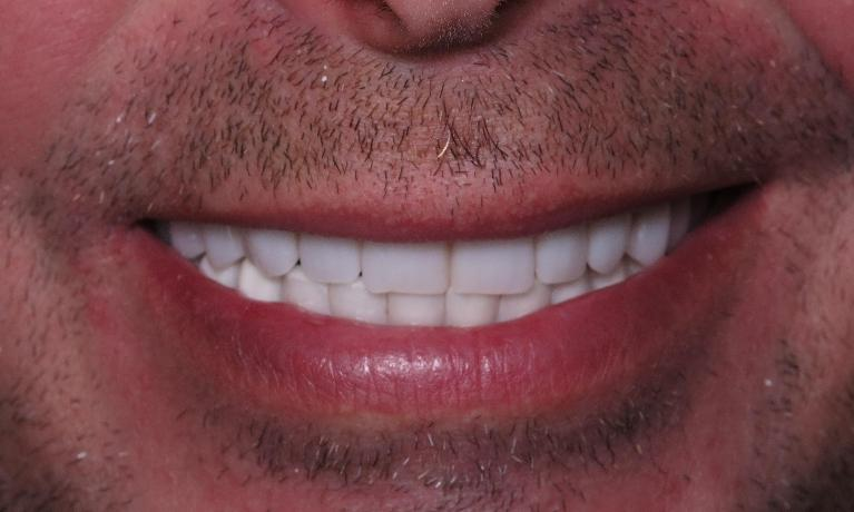 Implant-denture-After-Image