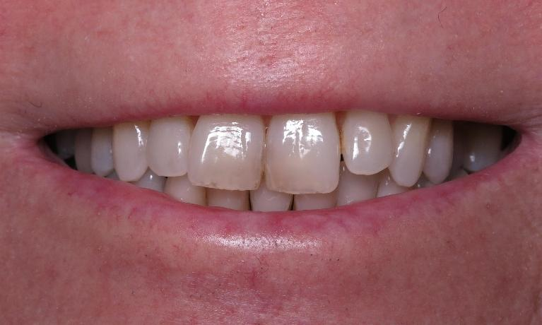 Whitening-Before-Image